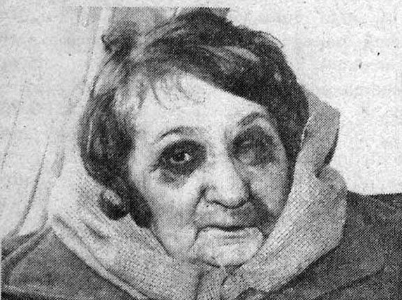 Armenian woman left abused following the Azeri pogroms. (Source: Public Radio of Armenia)